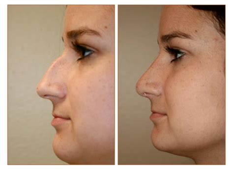 Rhinoplasty Nose Job Picture Gallery | Advanced Faces