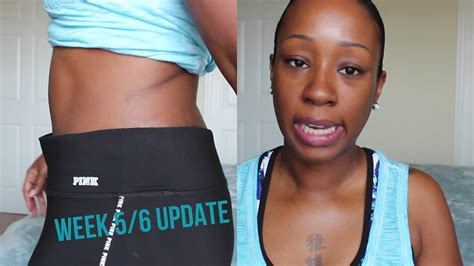 Tummy Tuck Update Week 5/6   Incision/Belly Button Shots 7