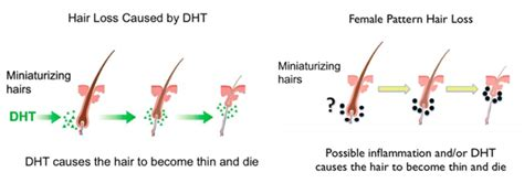 Finasteride (Propecia™): usage and side effects   NY Hair Loss