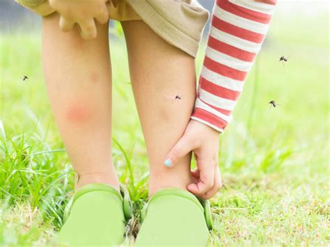 6 Signs You Could Have a Mosquito Bite Allergy | Reader's