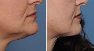 Plastic Surgery Case Study - Submental Chin Reduction for