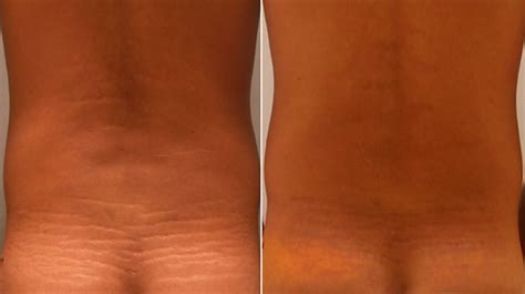 Stretch Marks • Michigan Cosmetic Surgery Center   A New You