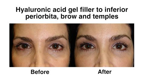 How to Rejuvenate Your Eyes Without Surgery « Cosmetic