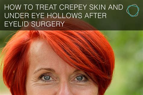 How to treat crepey skin and under eye hollows after